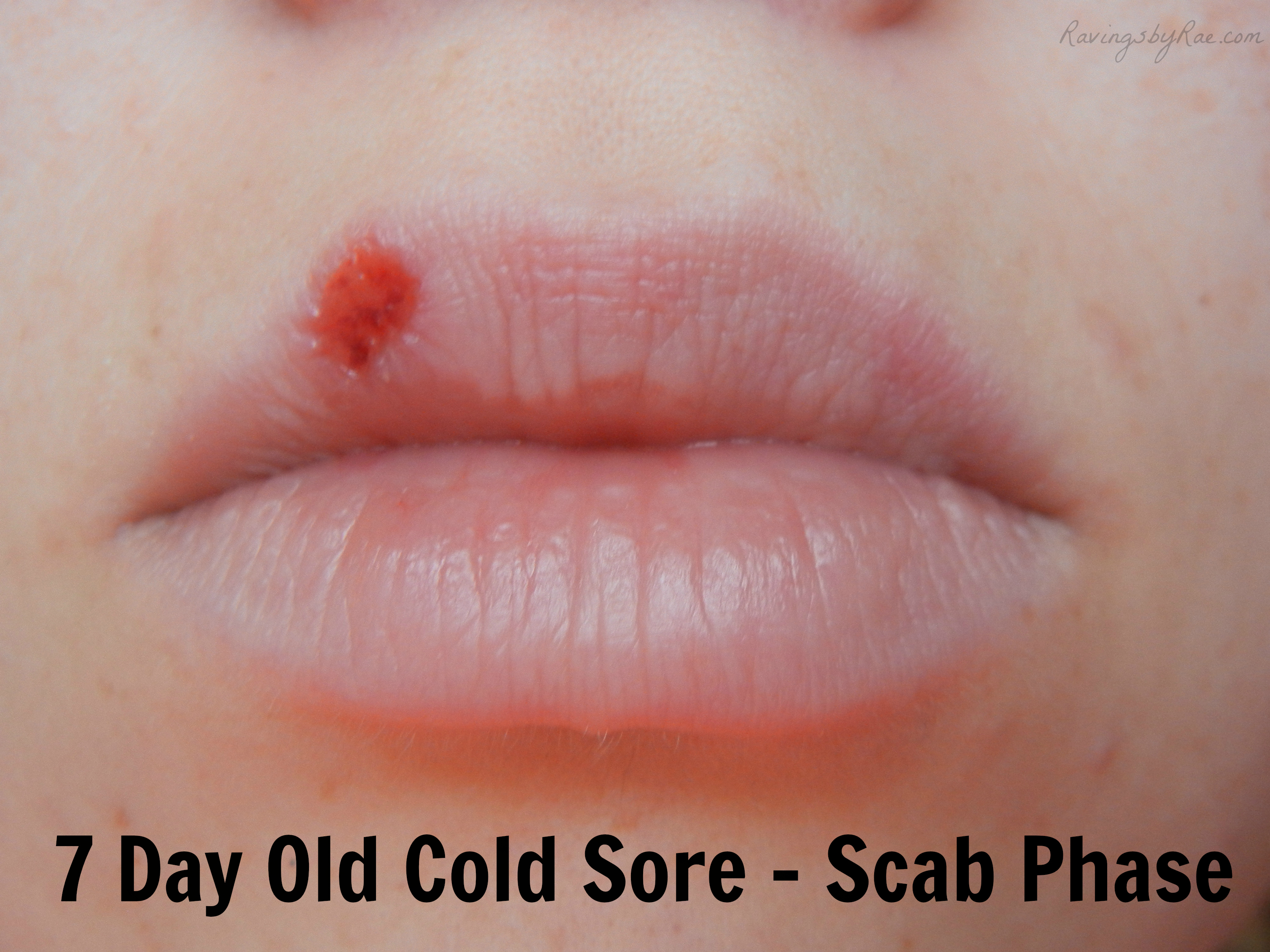 Cold Sore pic 1
